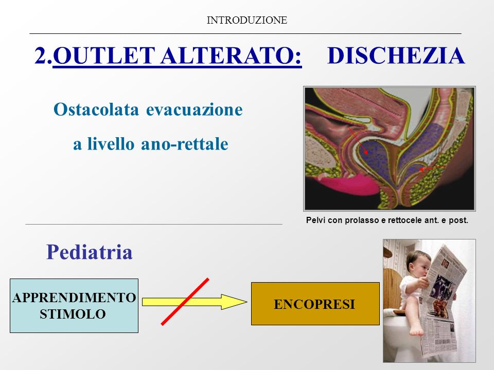 2.OUTLET ALTERATO: DISCHEZIA