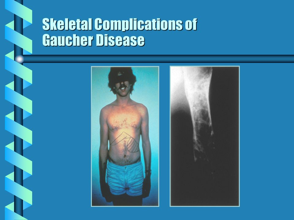 Skeletal Complications of Gaucher Disease