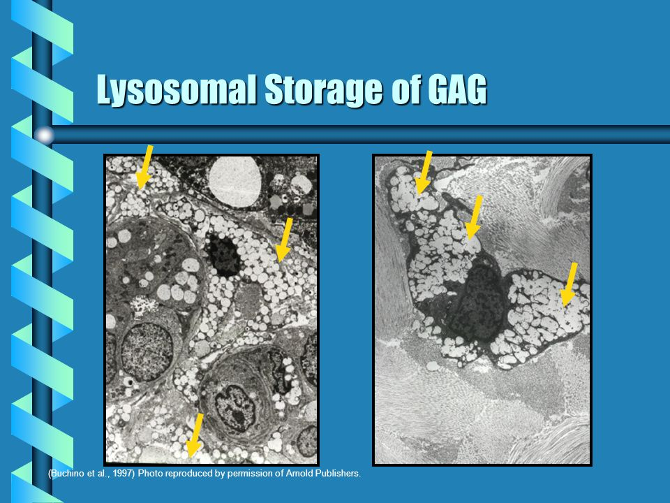 Lysosomal Storage of GAG
