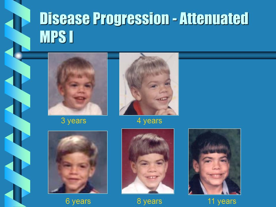 Disease Progression - Attenuated MPS I
