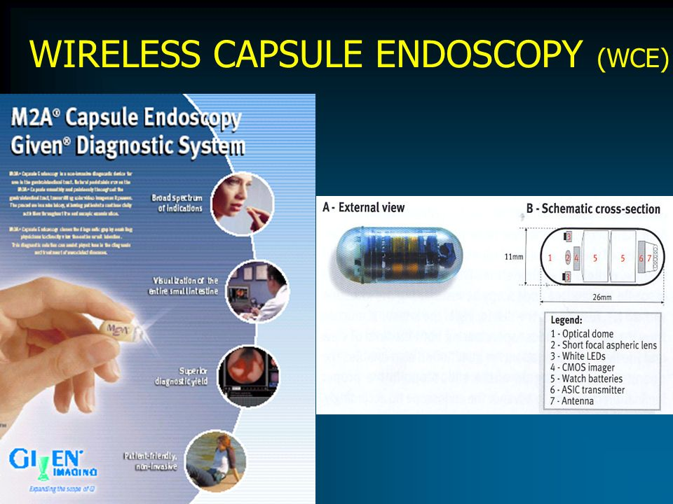 WIRELESS CAPSULE ENDOSCOPY (WCE)