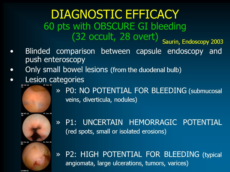 DIAGNOSTIC EFFICACY 60 pts with OBSCURE GI bleeding (32 occult, 28 overt)