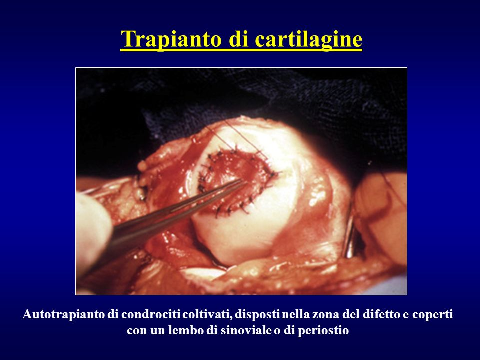 Trapianto di cartilagine