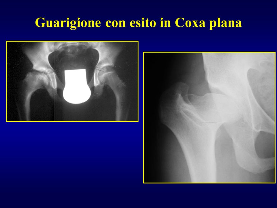 Guarigione con esito in Coxa plana