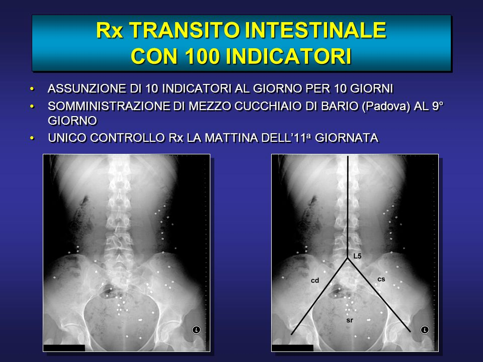 Rx TRANSITO INTESTINALE CON 100 INDICATORI