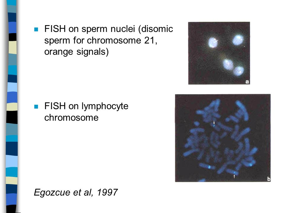 FISH on sperm nuclei (disomic sperm for chromosome 21, orange signals)