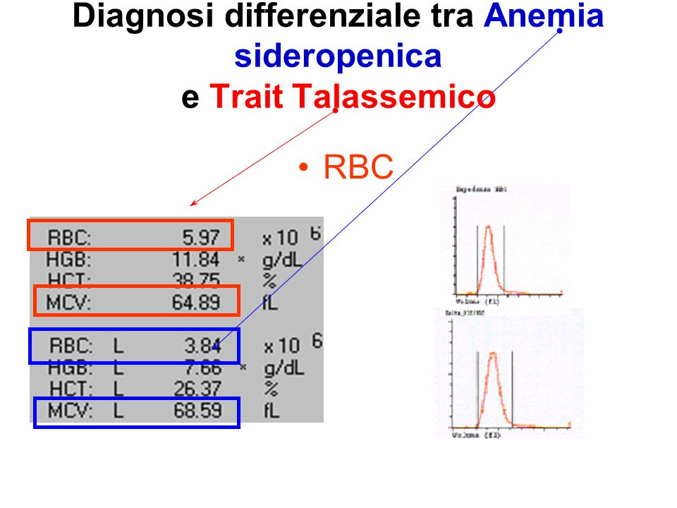 Diagnosi differenziale tra Anemia sideropenica e Trait Talassemico