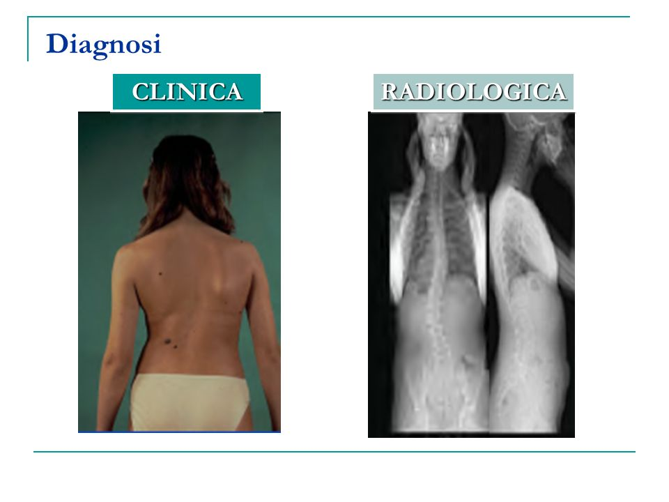 Diagnosi CLINICA RADIOLOGICA