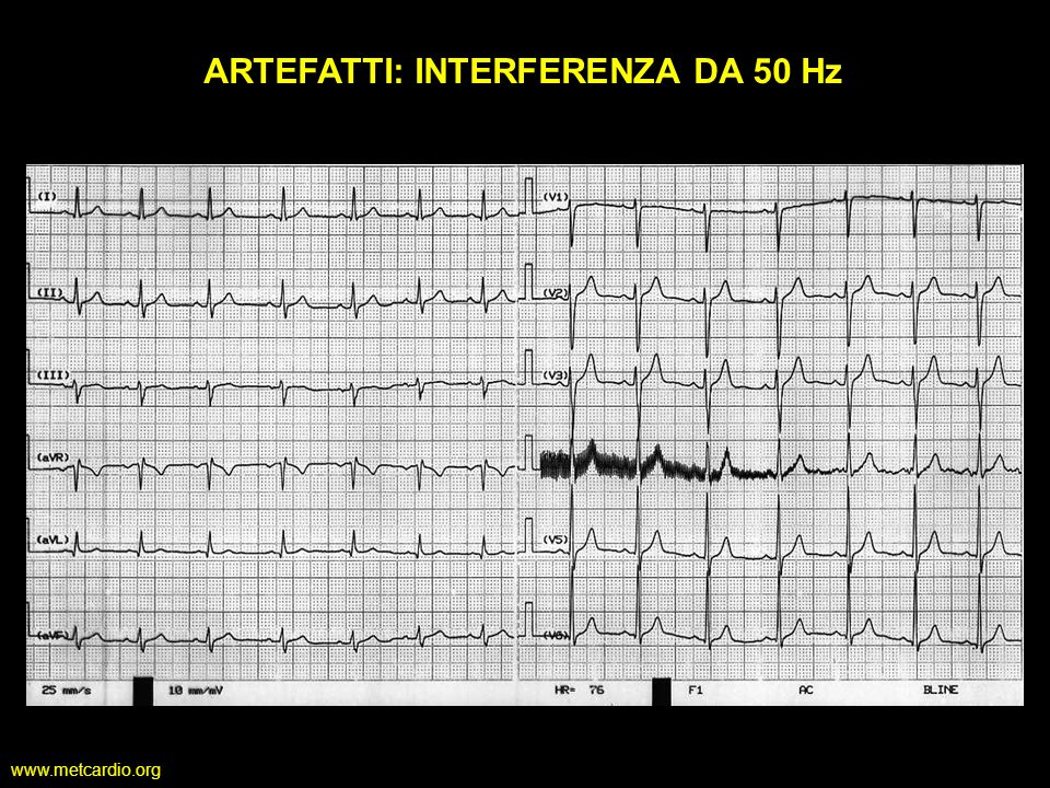 ARTEFATTI: INTERFERENZA DA 50 Hz