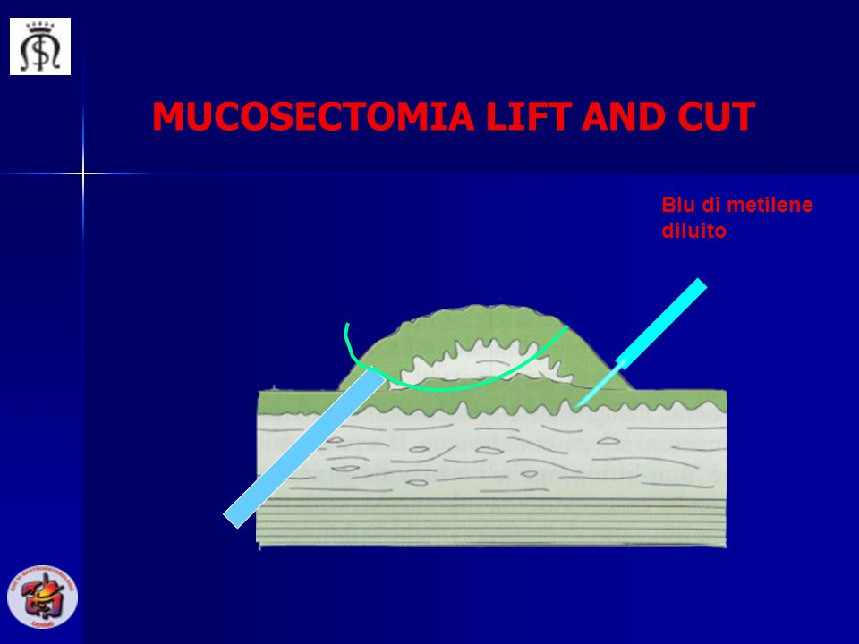 MUCOSECTOMIA LIFT AND CUT