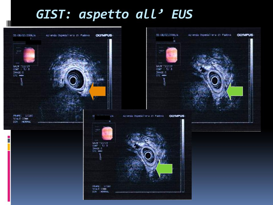 GIST: aspetto all' EUS