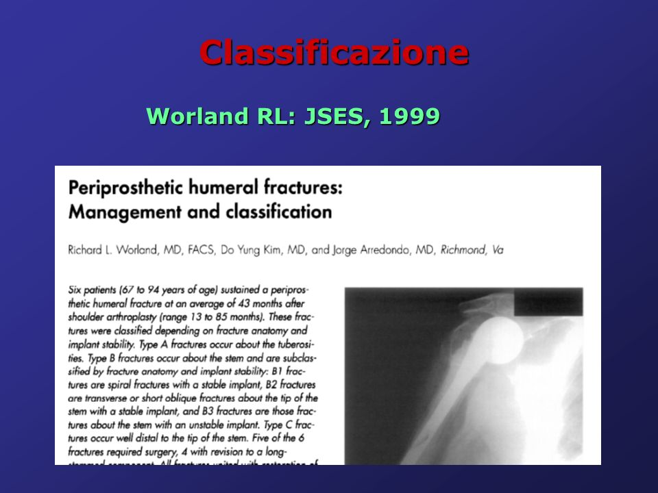 Classificazione Worland RL: JSES, 1999