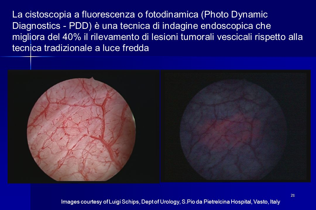 La cistoscopia a fluorescenza o fotodinamica (Photo Dynamic Diagnostics - PDD) è una tecnica di indagine endoscopica che migliora del 40% il rilevamento di lesioni tumorali vescicali rispetto alla tecnica tradizionale a luce fredda