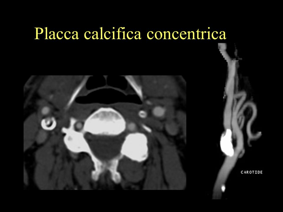 Placca calcifica concentrica