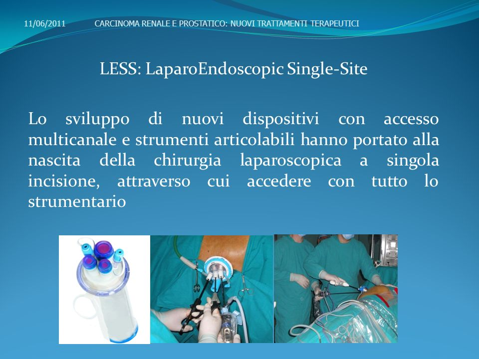 LESS: LaparoEndoscopic Single-Site