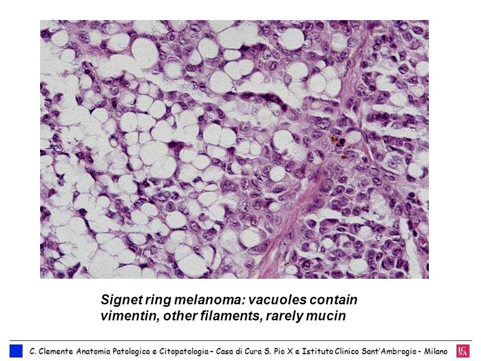 Signet ring melanoma: vacuoles contain vimentin, other filaments, rarely mucin