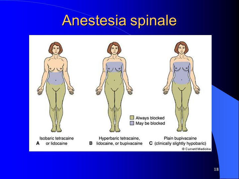 Anestesia spinale