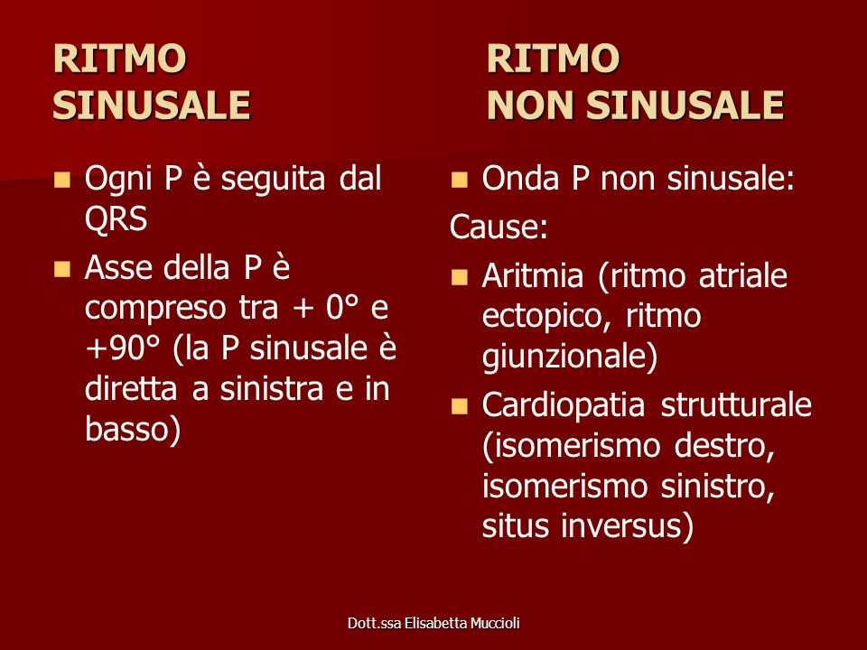 RITMO RITMO SINUSALE NON SINUSALE