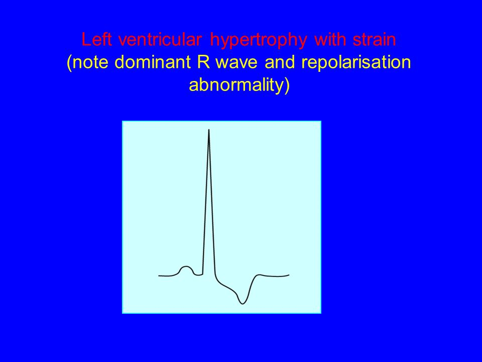 Left ventricular hypertrophy with strain (note dominant R wave and repolarisation abnormality)