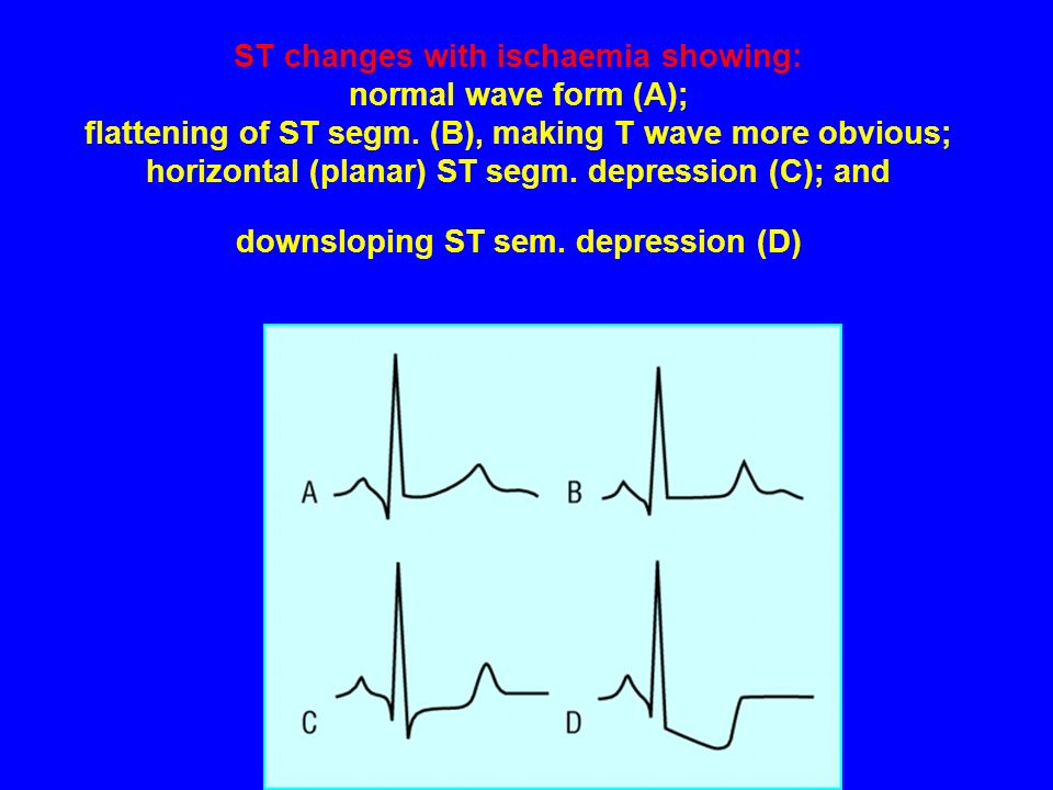 ST changes with ischaemia showing: normal wave form (A); flattening of ST segm.
