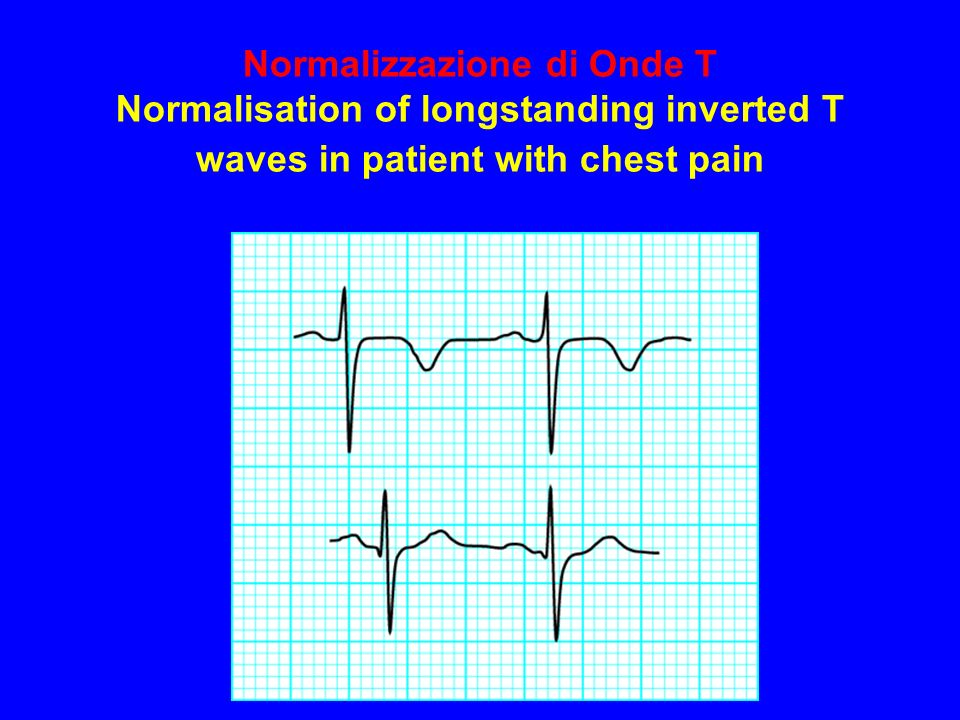 Normalizzazione di Onde T Normalisation of longstanding inverted T waves in patient with chest pain