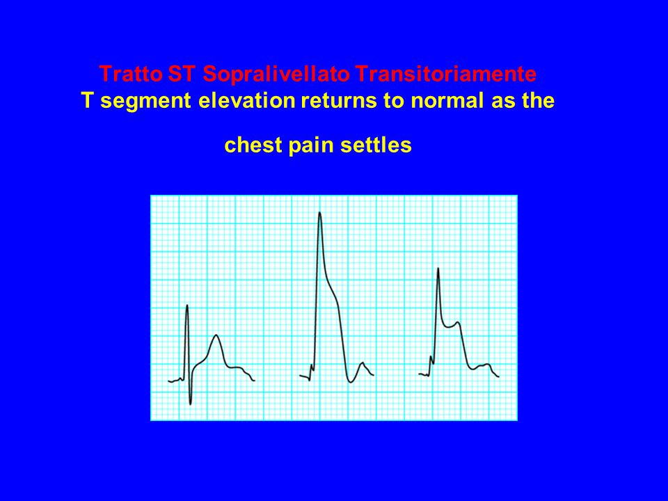 Tratto ST Sopralivellato Transitoriamente T segment elevation returns to normal as the chest pain settles