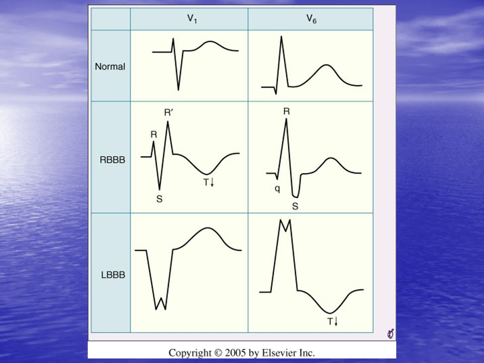 <b>FIGURE 9-27</b> Comparison of typical QRS-T patterns in right bundle branch block (RBBB) and left bundle branch block (LBBB) with the normal pattern in leads V<sub>1</sub> and V<sub>6</sub>.