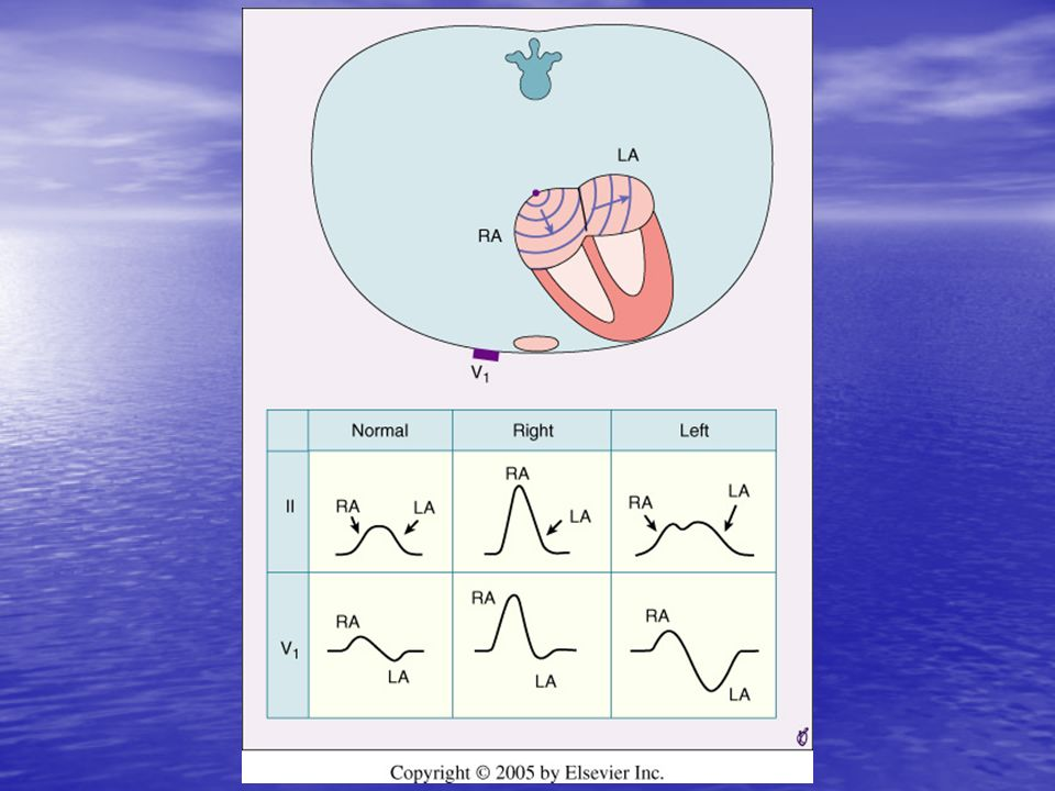 <b>FIGURE 9-17</b> Schematic representation of atrial depolarization <b>(diagram)</b> and P wave patterns associated with normal atrial activation <b>(left panel)</b> and with right <b>(middle panel)</b> and left <b>(right panel)</b> atrial abnormalities.