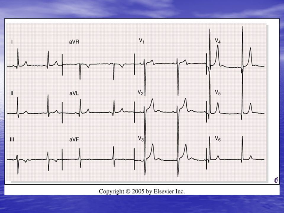<b>FIGURE 9-21</b> Left ventricular hypertrophy with prominent positive anterior T waves from a patient with severe aortic regurgitation.