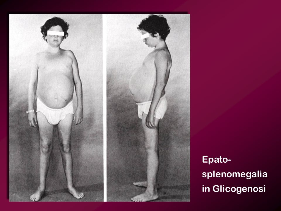 Epato- splenomegalia in Glicogenosi
