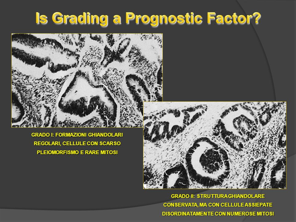 Is Grading a Prognostic Factor