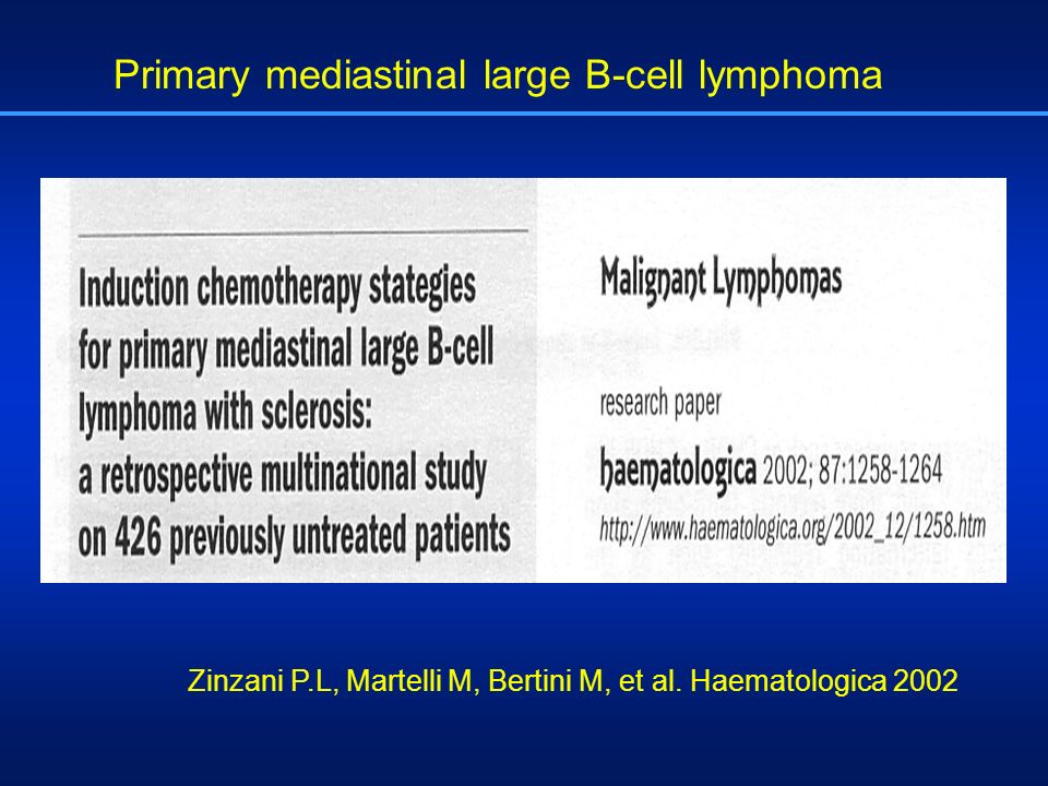 Primary mediastinal large B-cell lymphoma