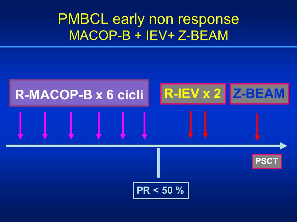 PMBCL early non response MACOP-B + IEV+ Z-BEAM