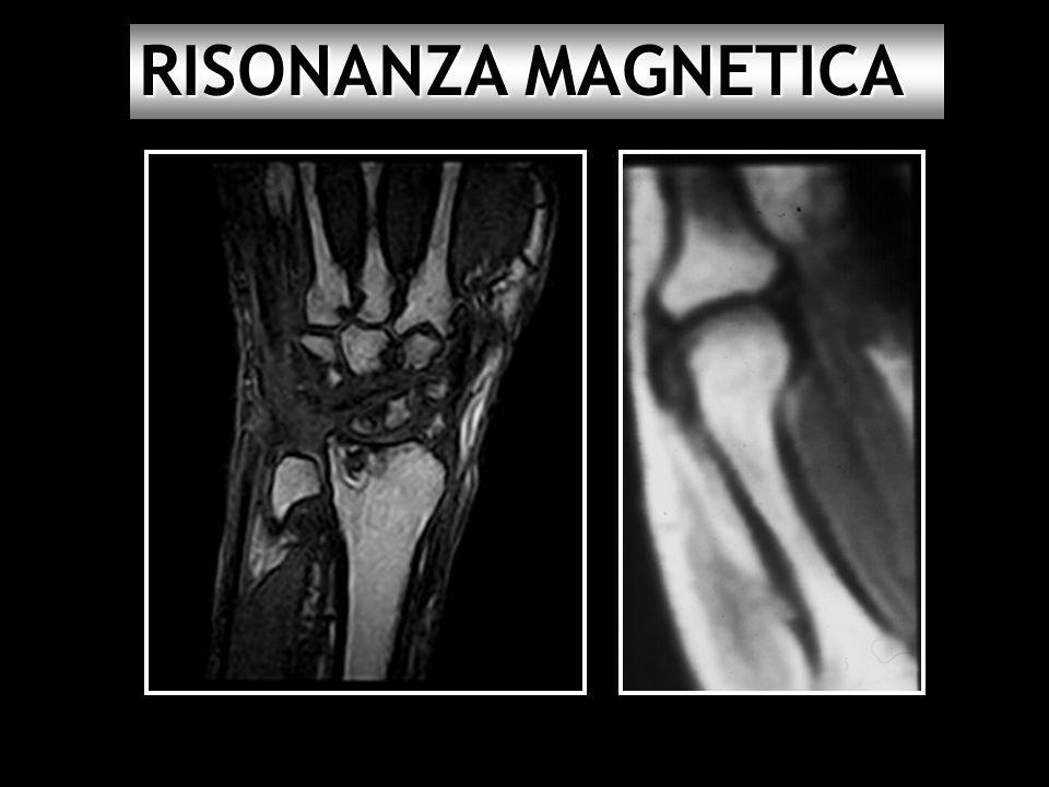 Gli esami che ti permettono di scoprire in anticipo l'artrite reumatoide