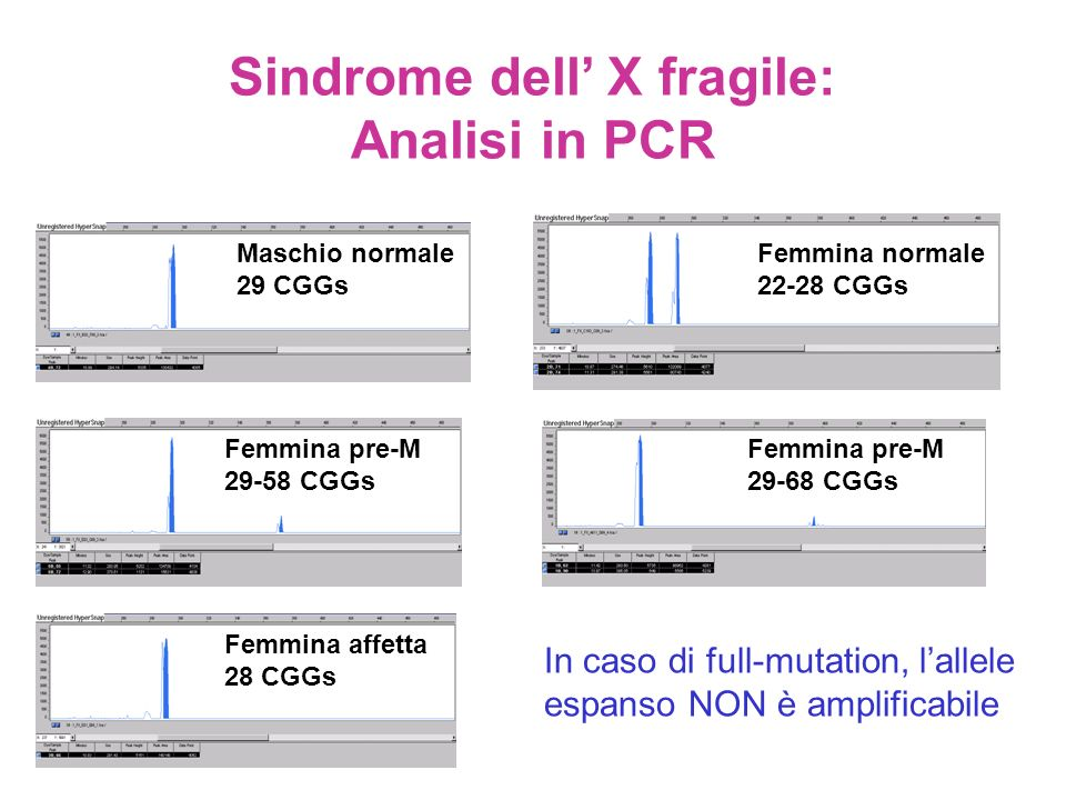 Sindrome dell' X fragile: