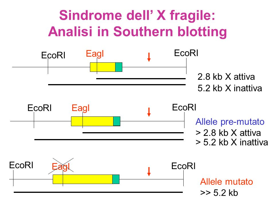 Sindrome dell' X fragile: Analisi in Southern blotting