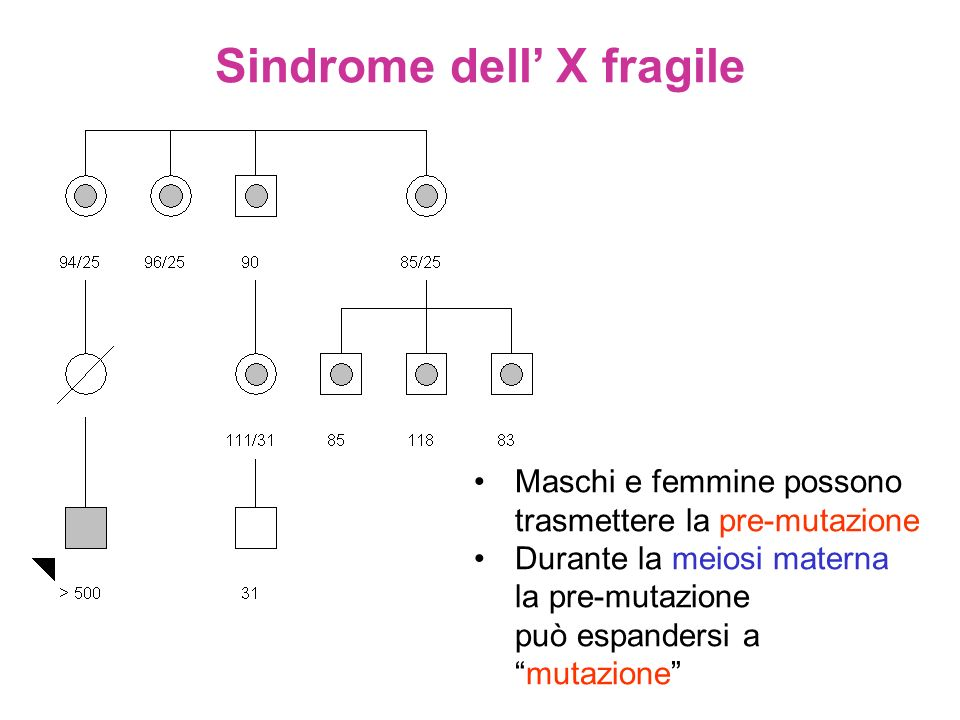 Sindrome dell' X fragile