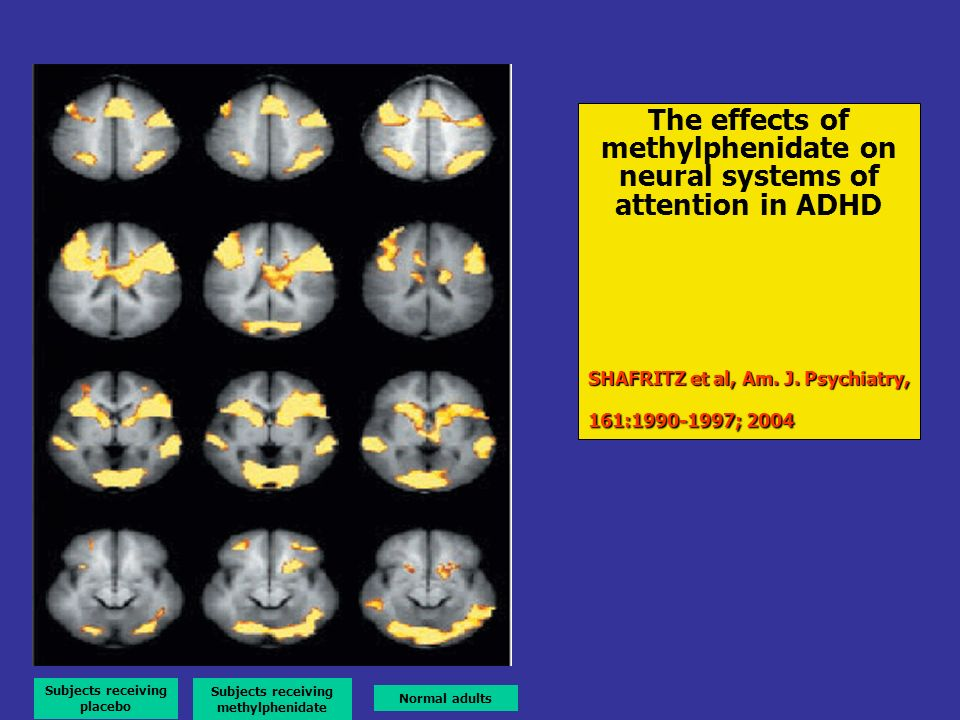 The effects of methylphenidate on neural systems of attention in ADHD