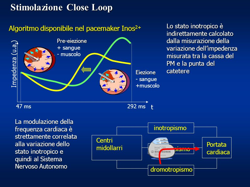Stimolazione Close Loop