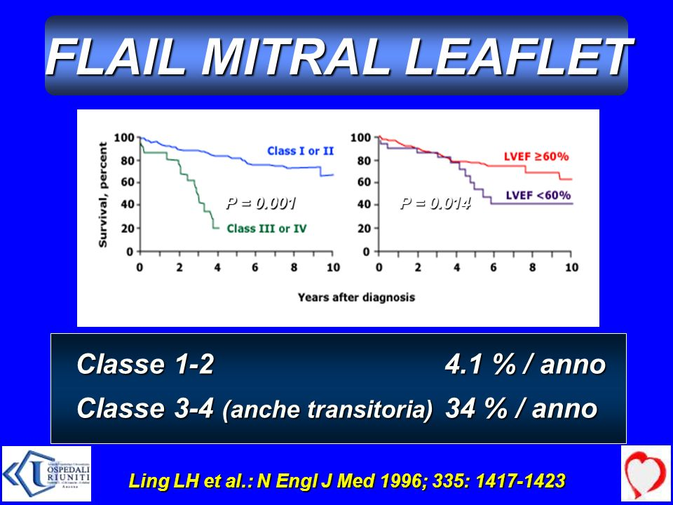 FLAIL MITRAL LEAFLET Classe 1-2 Classe 3-4 (anche transitoria)