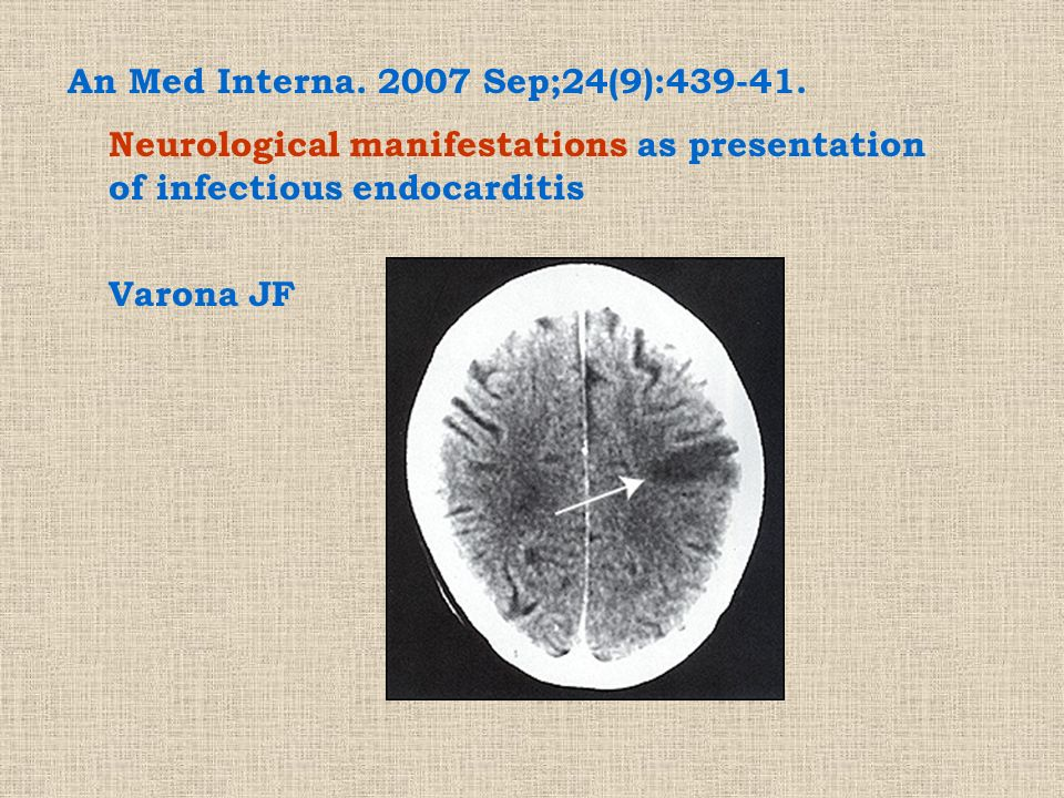 An Med Interna. 2007 Sep;24(9):439-41.