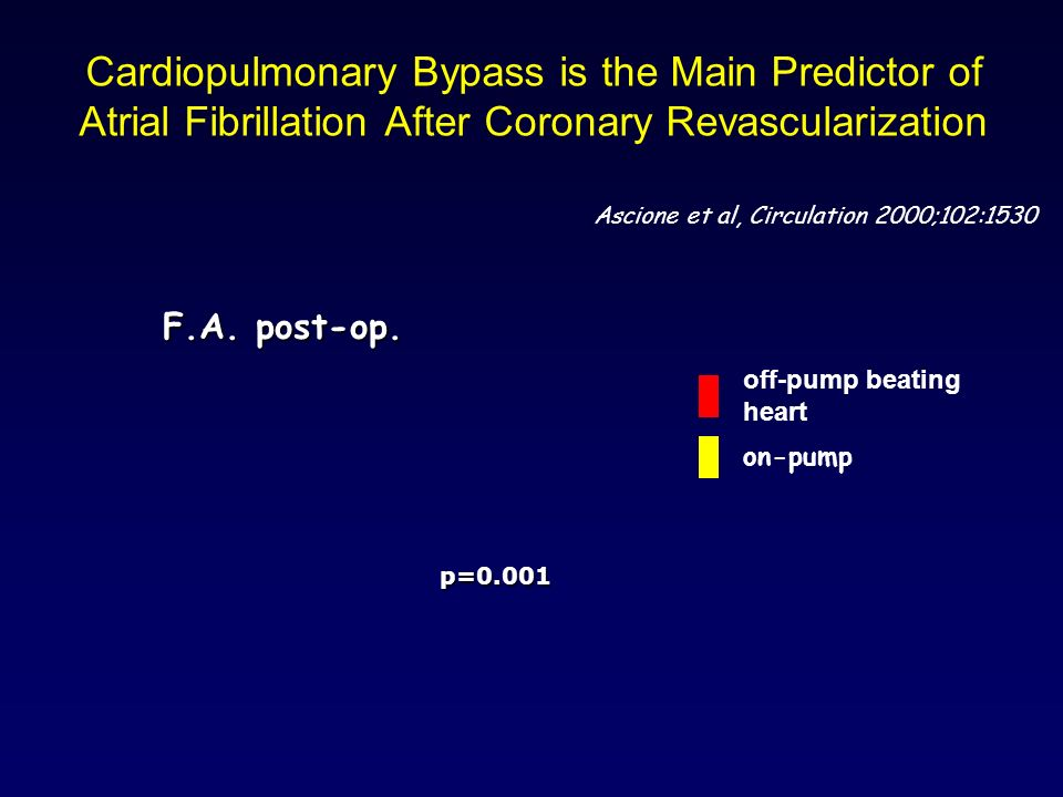 Cardiopulmonary Bypass is the Main Predictor of Atrial Fibrillation After Coronary Revascularization