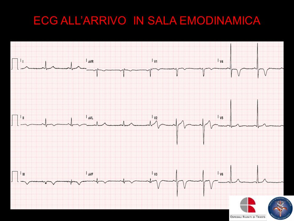 ECG ALL'ARRIVO IN SALA EMODINAMICA