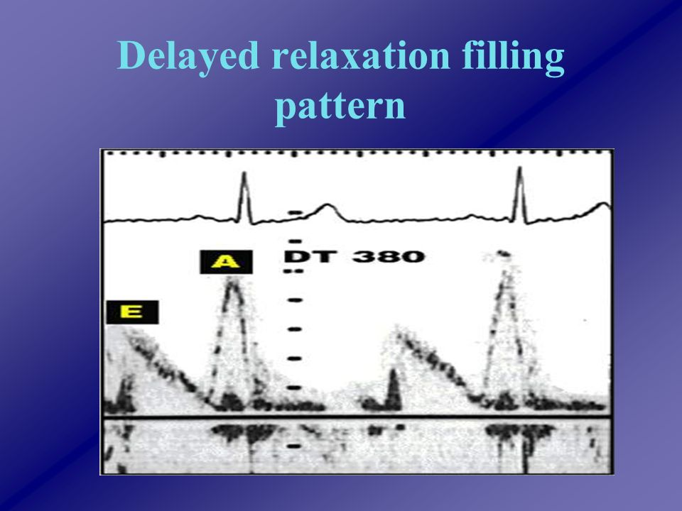 Delayed relaxation filling pattern