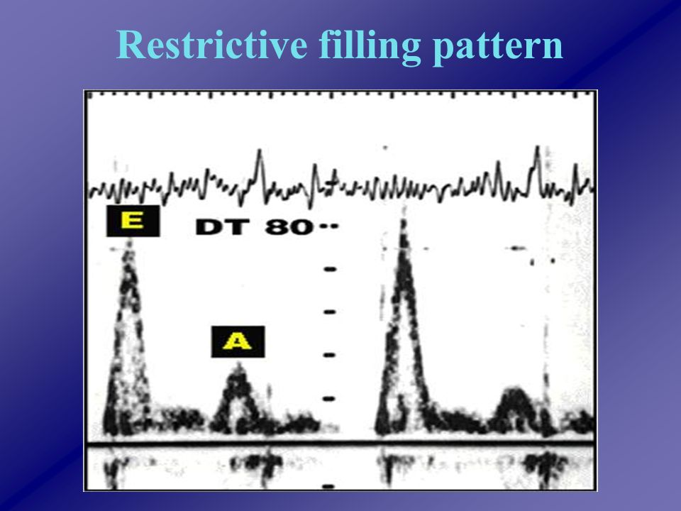 Restrictive filling pattern