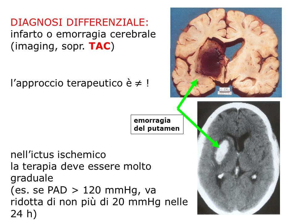 DIAGNOSI DIFFERENZIALE: infarto o emorragia cerebrale