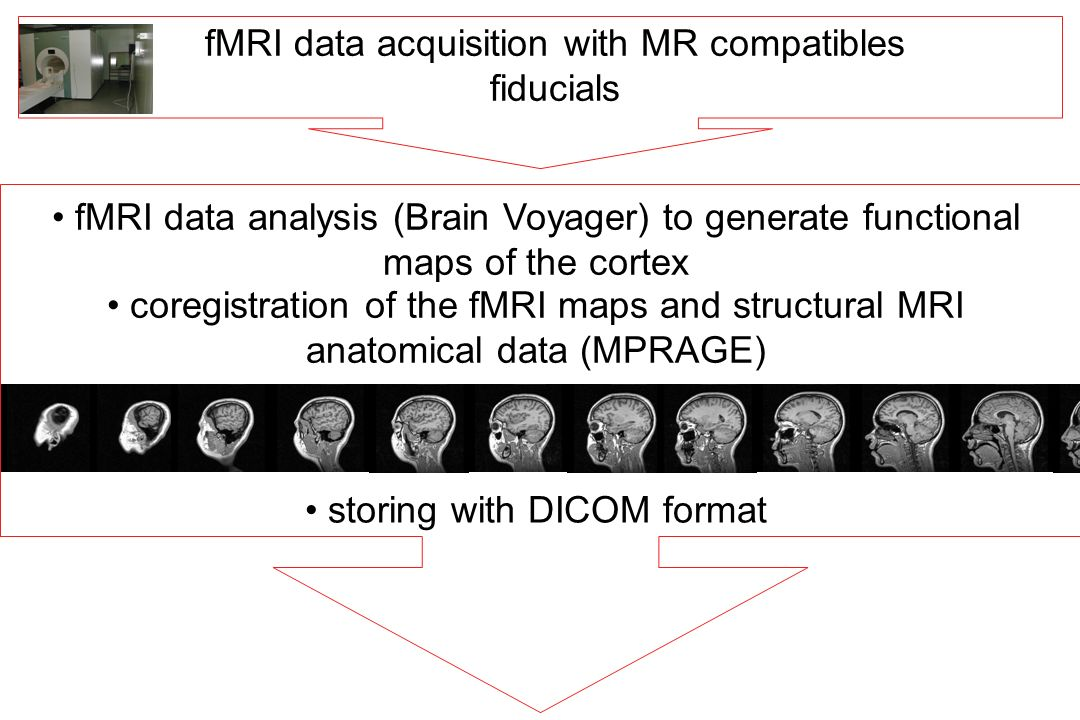 fMRI data acquisition with MR compatibles fiducials