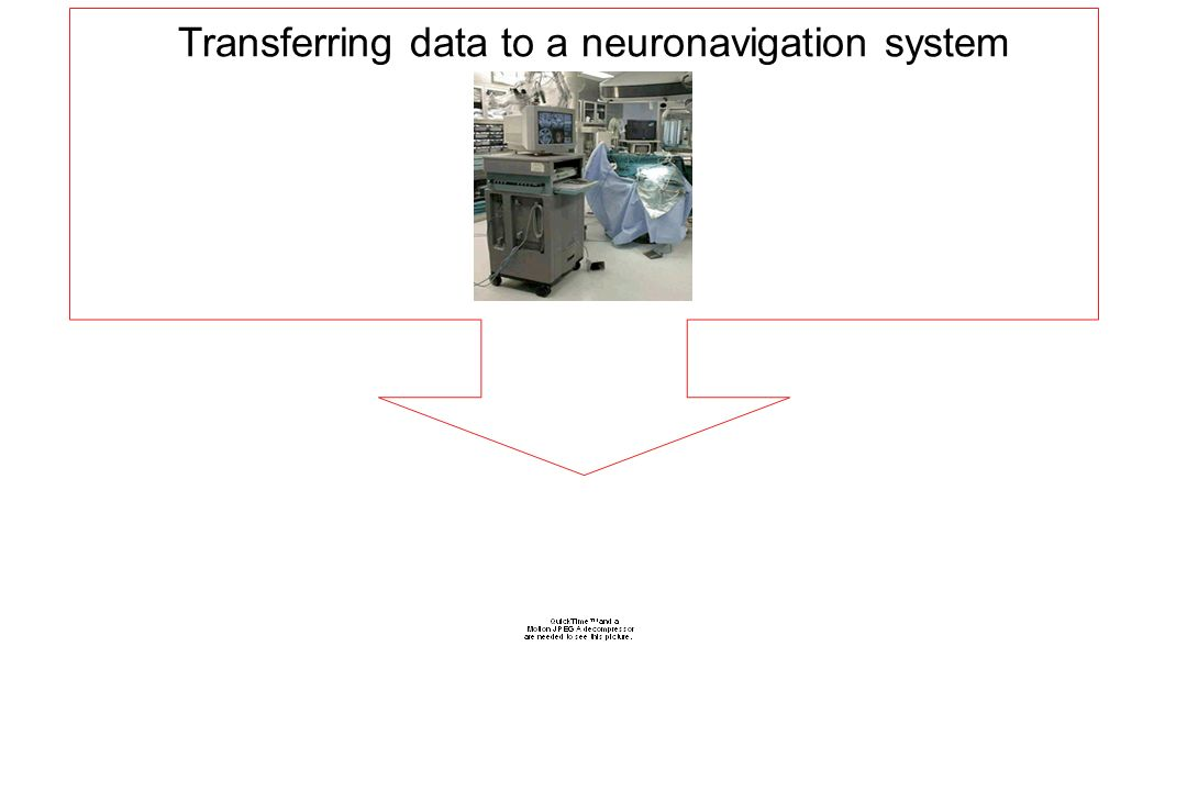 Transferring data to a neuronavigation system