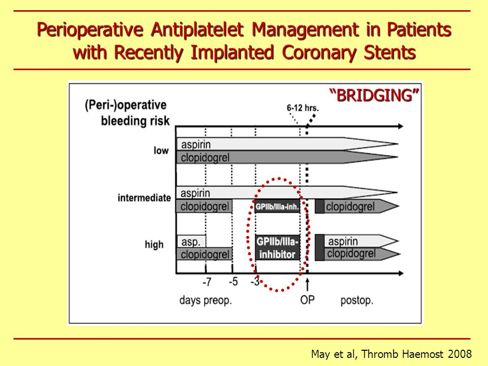 Perioperative Antiplatelet Management in Patients with Recently Implanted Coronary Stents
