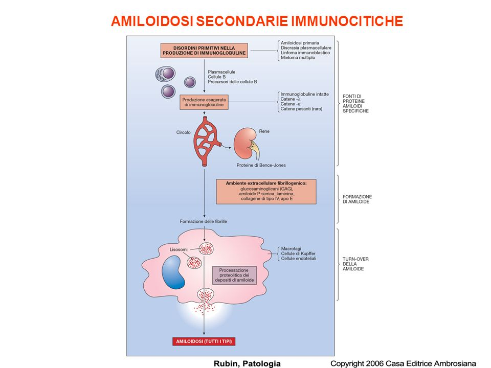 AMILOIDOSI SECONDARIE IMMUNOCITICHE